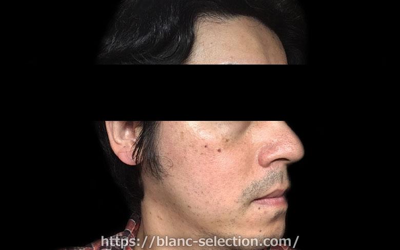 【大阪府松原市】たかはし形成外科・美容外科 シミ取り放題 行ってみた!Part3 施術後1日