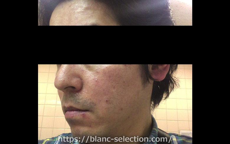 【大阪府松原市】たかはし形成外科・美容外科 シミ取り放題 行ってみた!Part2 施術
