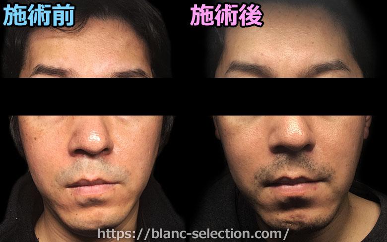 【大阪府松原市】たかはし形成外科・美容外科 シミ取り放題 行ってみた!Part5 施術後10日目