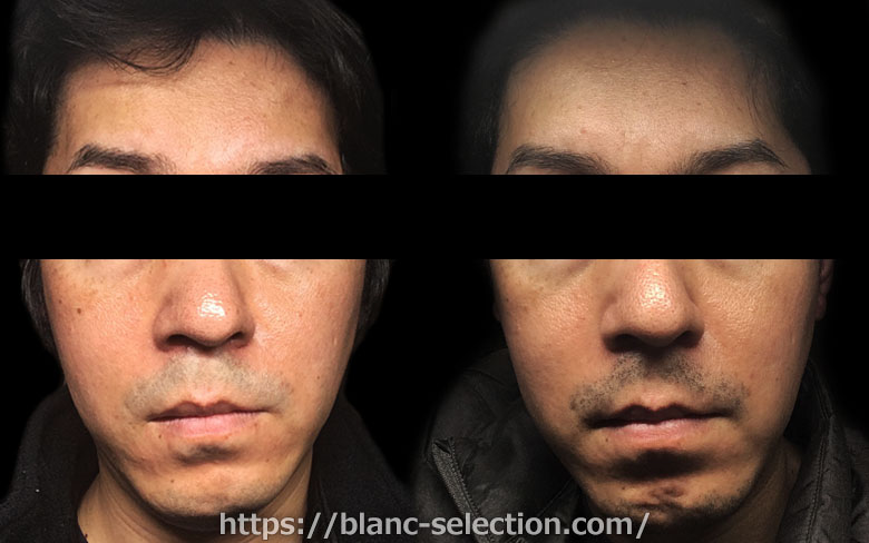【大阪府松原市】たかはし形成外科・美容外科 シミ取り放題 行ってみた!Part6 施術後20日目
