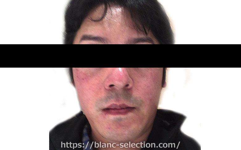 【森ノ宮院】たかはし形成外科・美容外科 シミ取り放題 行ってみた!Part2 施術
