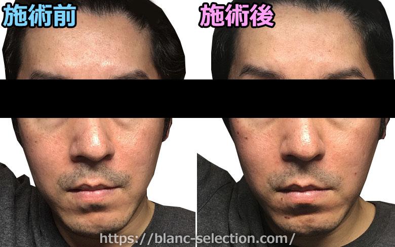 【森ノ宮院】たかはし形成外科・美容外科 シミ取り放題 行ってみた!Part3 施術後1日目