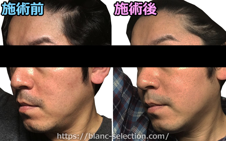 【森ノ宮院】たかはし形成外科・美容外科 シミ取り放題 行ってみた!Part4 施術後10日目