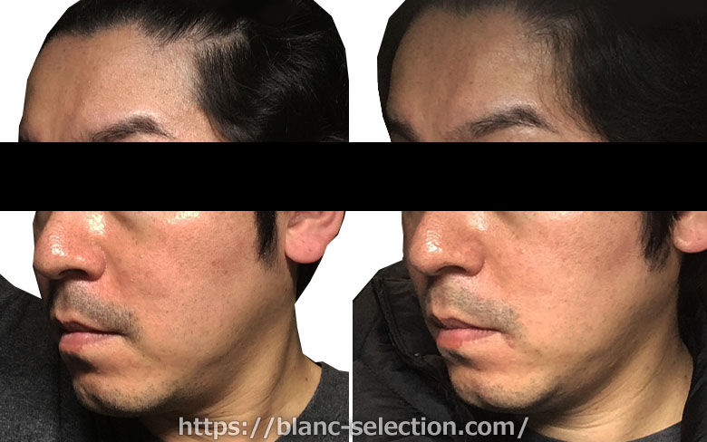 【森ノ宮院】たかはし形成外科・美容外科 シミ取り放題 行ってみた!Part5 施術後20日目